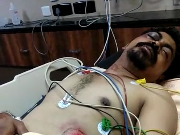 Help My Brother With His Surgery