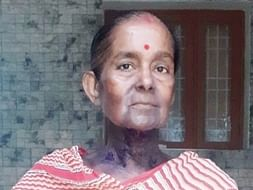 Help My Aunt, Sukla Dey, To Live a Life Free From Cancer