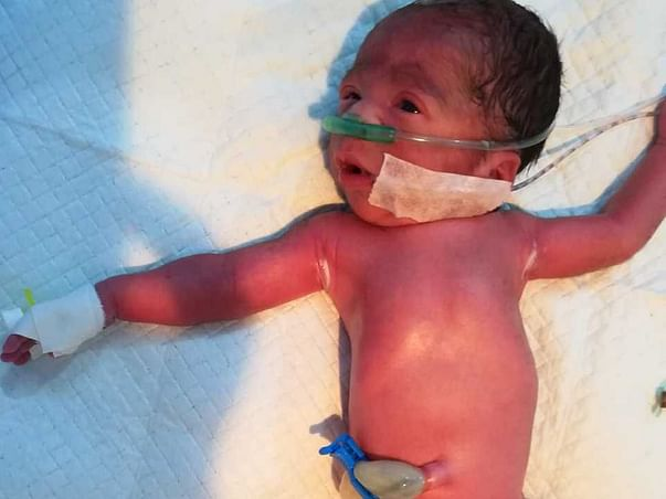 Help A New Born Battle Life