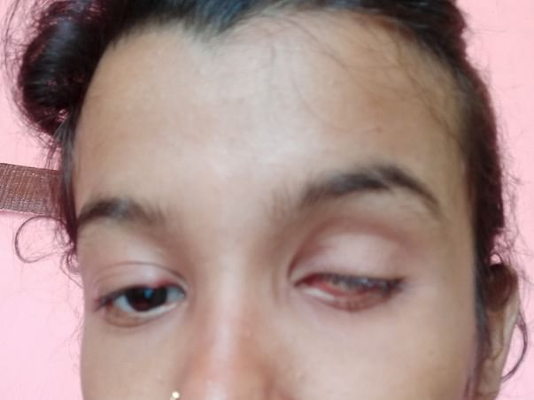 Help  sangeetha to get Back Her Vision