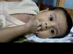 Help 11 Month Old Sharwin Undergo A Bone Marrow Transplant