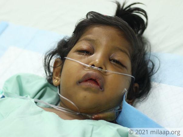 Help Little Safa Fight Acute Liver Failure And Undergo A Transplant