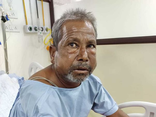 Help My Uncle Who Had Accident And Needs to Undergo Chest surgery