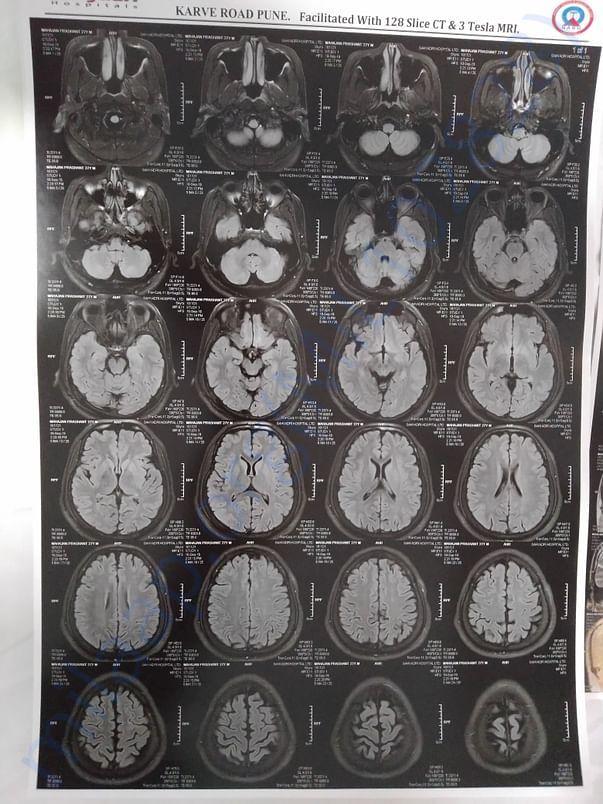 MRI 4
