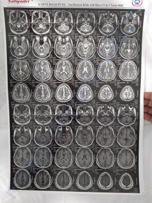 MRI 6