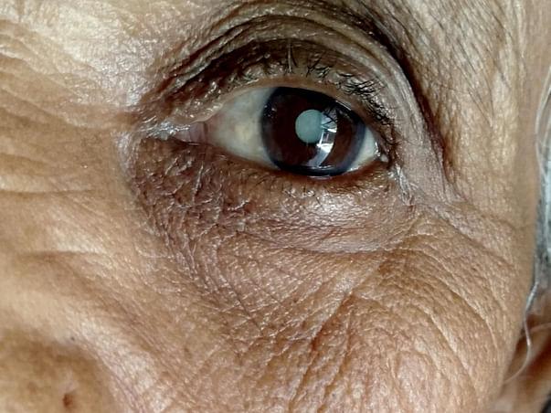 Help Me To Undergo An Eye Surgery