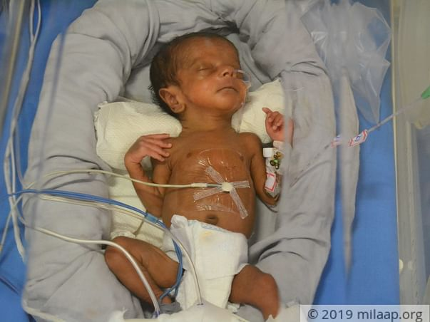 My Twins are born premature and is in the ICU.