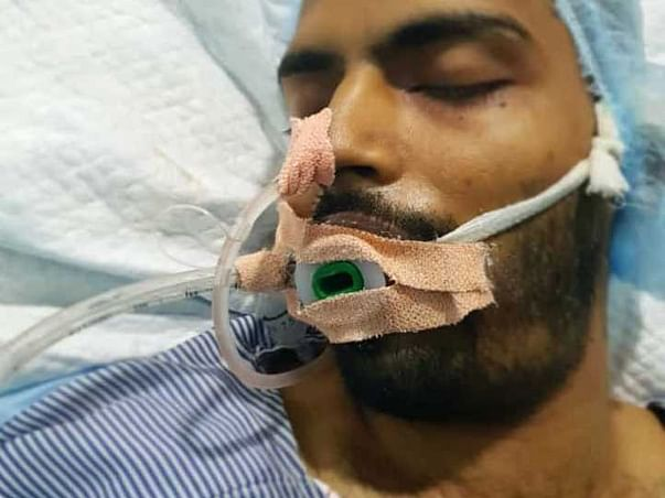 26 years old sayyed mobin husain needs your help fight cranium skull