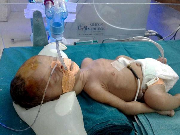 Help Nayanaben Save Her New Born Baby