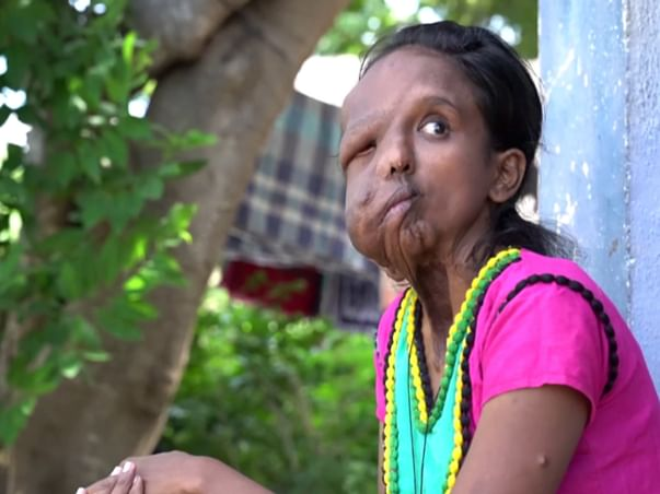 A Rare Disease Has Melted This 24-Yr-Old Chennai Woman's Face
