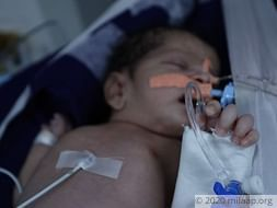 Help Ruksar's Baby Recover From Pulmonary Hemorrhage