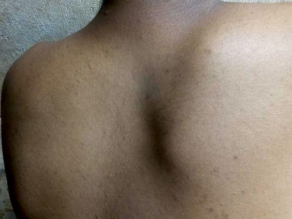Detethering and dorsal scoliotic deformity correction