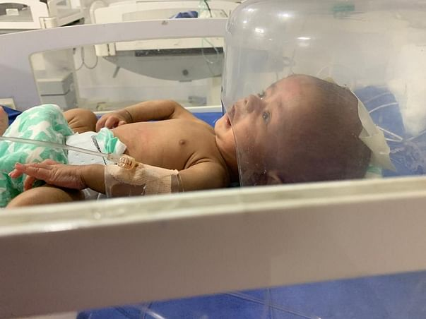 Help 2 Months Old Mahad Recover From Hypercephalus