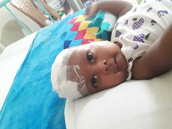 2 months old ARUSH DEY needs your help fight Right fronto-parietal space occupying lesion
