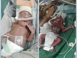 Help my twin daughters battling for life in NICU.