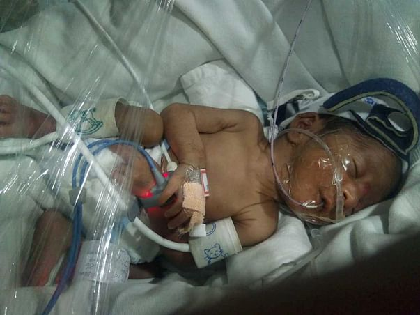 Help a 7 month Premature Baby Girl struggling for Life in NICU