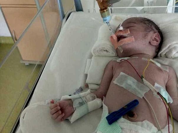 Help 18 Days Old Arjun Fight Nonketotic Hyperglycinemia