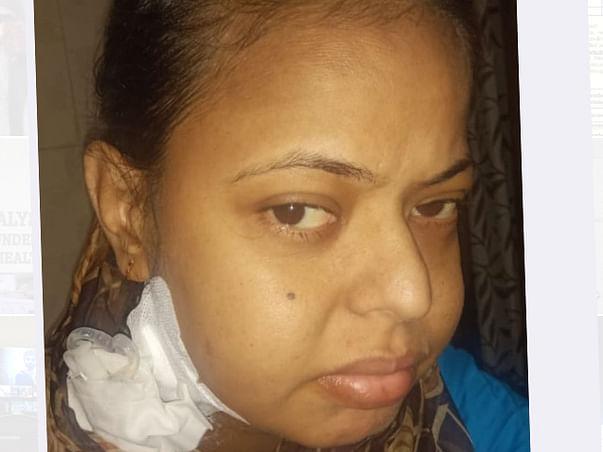 Help My Sister Anshu Pandita Undergo A Kidney Transplant