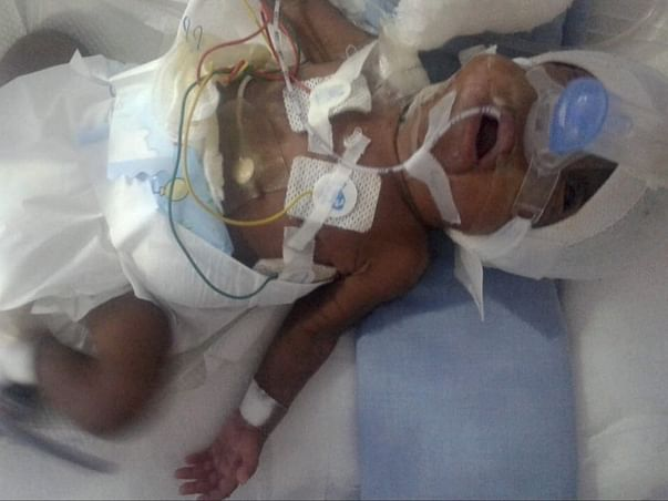 Help Shyam's and Saroja's Premature Baby To Recover!