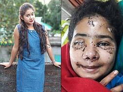 21-Year-Old Needs An Eye Transplant After A Road Accident