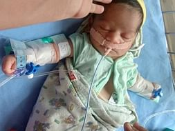Help 9 Days Old, Rupali Ishwar From Suffering Heart Ailment