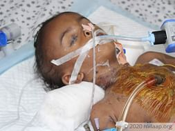 Help Naresh Recover From Congenital Heart Disease