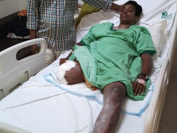 Help rachakonda devaraju for his operation for graciloplasty