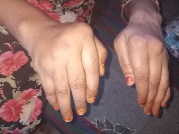 Help Me To Cure My Mother's Arthritis