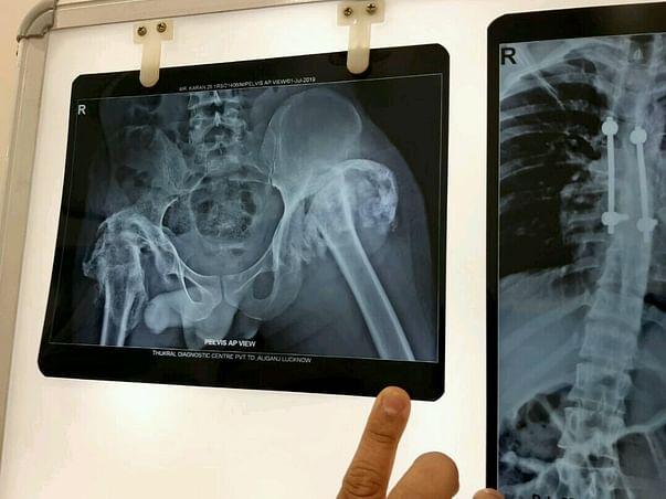 Help Karan Undergo Knee Surgery
