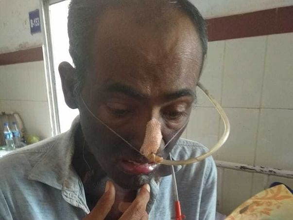 Support Bidhyadara Panda Recover From Oral Cancer