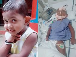 Help Little Taniya Recover from Severe Injuries