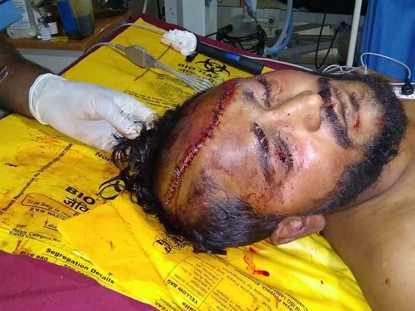 Help sourabh to Fight with head injury