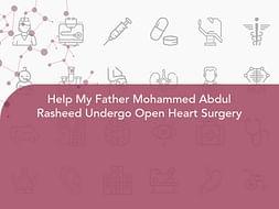Help My Father Mohammed Abdul Rasheed Undergo Open Heart Surgery