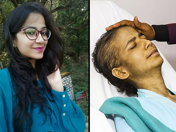 Help My Friend Himani Joshi Fight Blood Cancer
