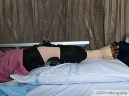 Help V Prabhavathi Recover From Synovinal Sarcoma Of Right Knee
