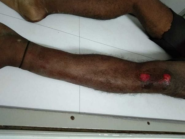 Support Arun Recover From Road Traffic Accident Injuries
