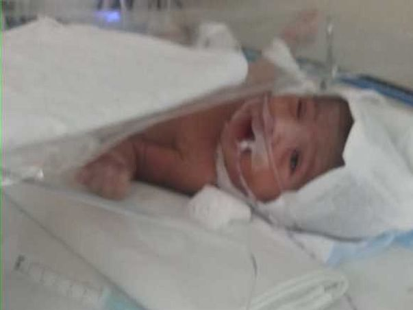 Help a Baby Girl to Survive and to see a Beautiful World...