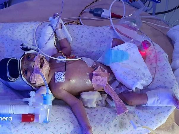 Help Premature 3 Days Old Baby Fight For Kidney Dialysis