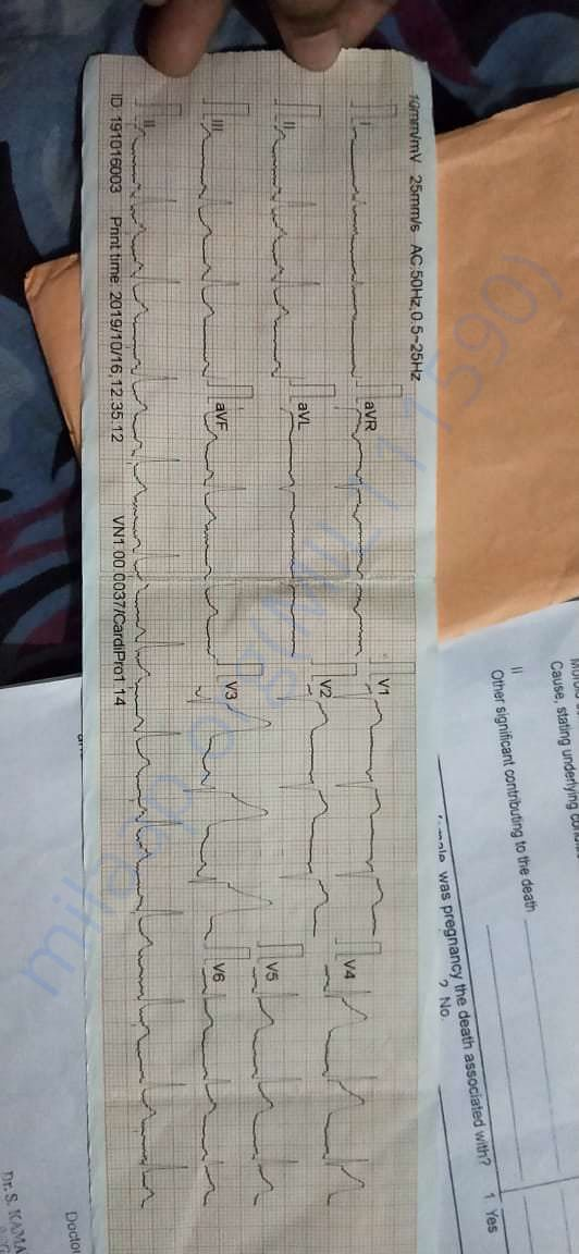 Her father's ECG