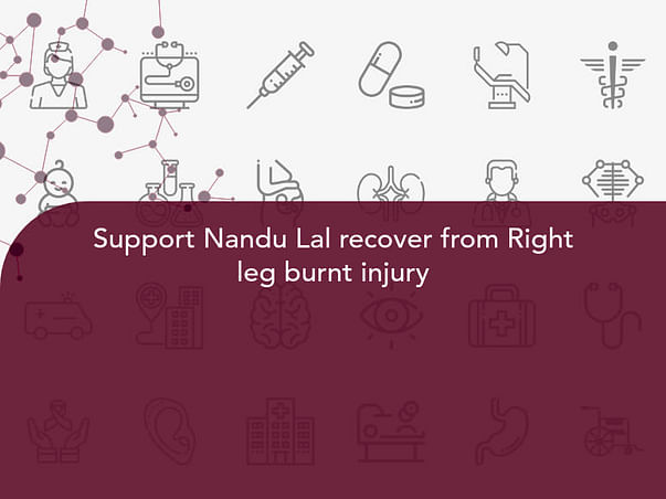 Support Nandu Lal recover from Right leg burnt injury