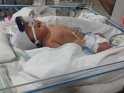 10 days old Baby of Khima Kadel needs your help fight Cardiac disease