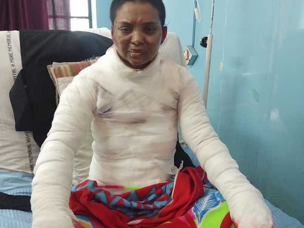 Please Help Shital Recover From Severe Body Burns