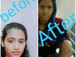 15 Years Old Swapna Needs Your Help Fight Bone Cancer
