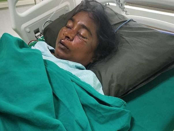 Please Help My Mother (Nilaveni), Fight Fungal Infection