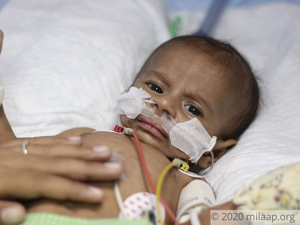 My 2 month old baby is battling for his life in the ICU