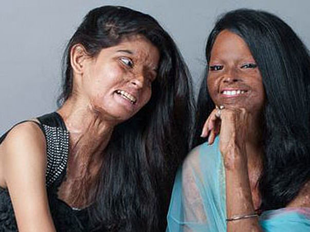 Giving Acid Attack Survivors A New Hope