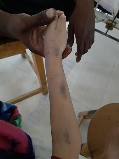 SAMARTH hand damaged due to inserting syringes in hand.