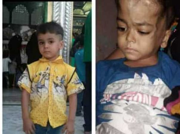6 Years Old Zain Ali Khan Needs Your Help Fight Neck Cancer