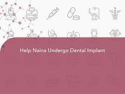 Help Naina Undergo Dental Implant