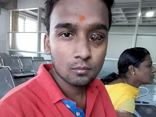 Help Arun Get His Eyesight Back